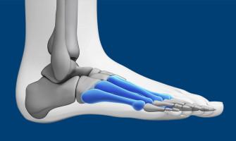 Disturbi del piede: la metatarsalgia