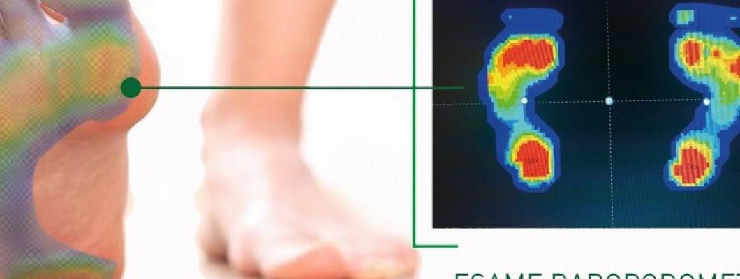 Plantari su misura per migliorare la salute dei propri piedi